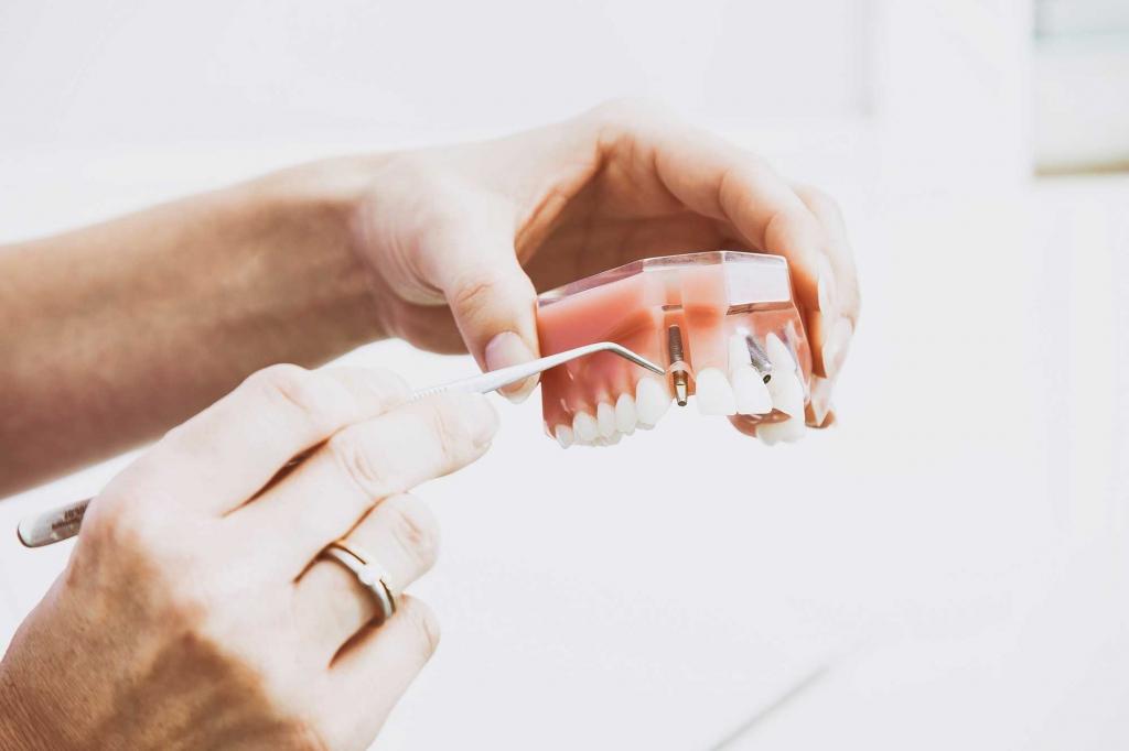 Implantatversorgungen